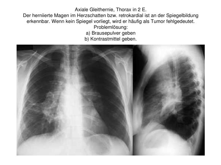 Axiale Gleithernie, Thorax in 2 E.