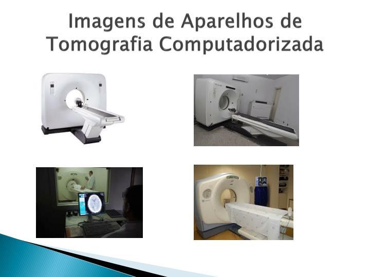 Imagens de Aparelhos de Tomografia Computadorizada