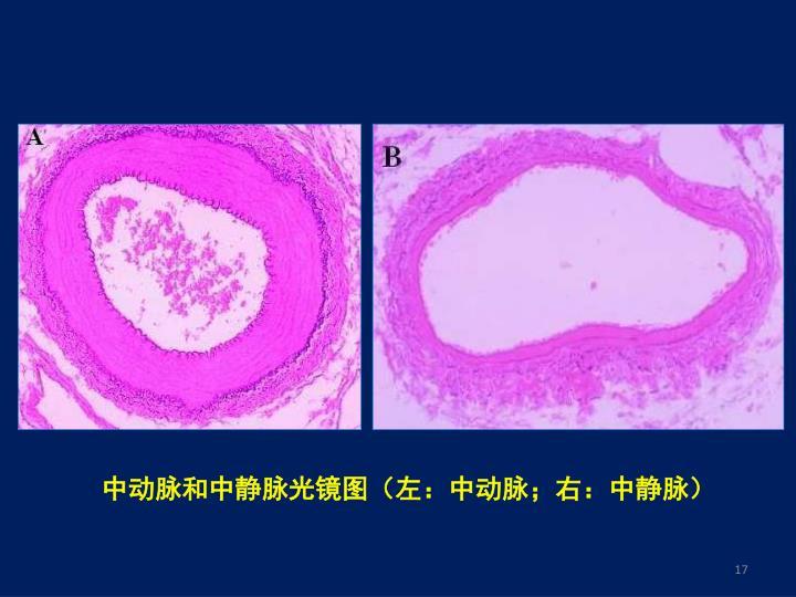 中动脉和中静脉光镜图(左:中动脉;右:中静脉)