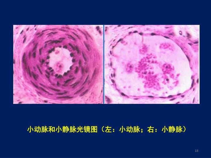 小动脉和小静脉光镜图(左:小动脉;右:小静脉)
