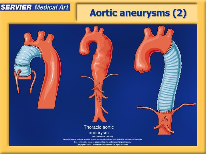 Aortic aneurysms (2)