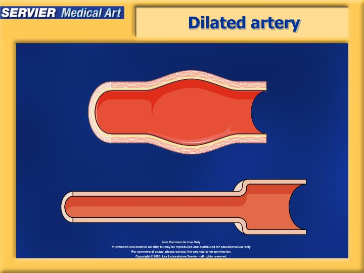 Dilated artery