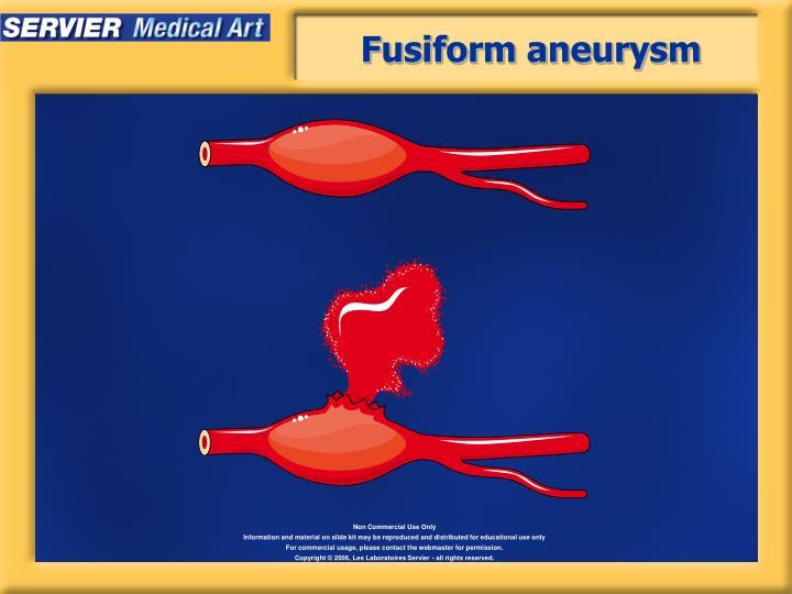 Fusiform aneurysm