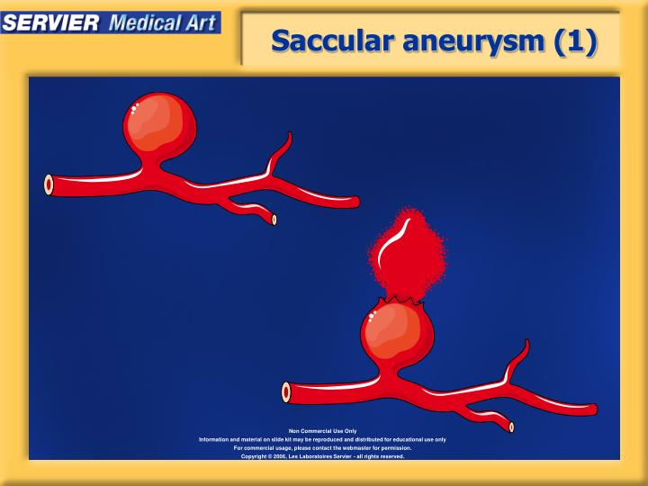Saccular aneurysm (1)