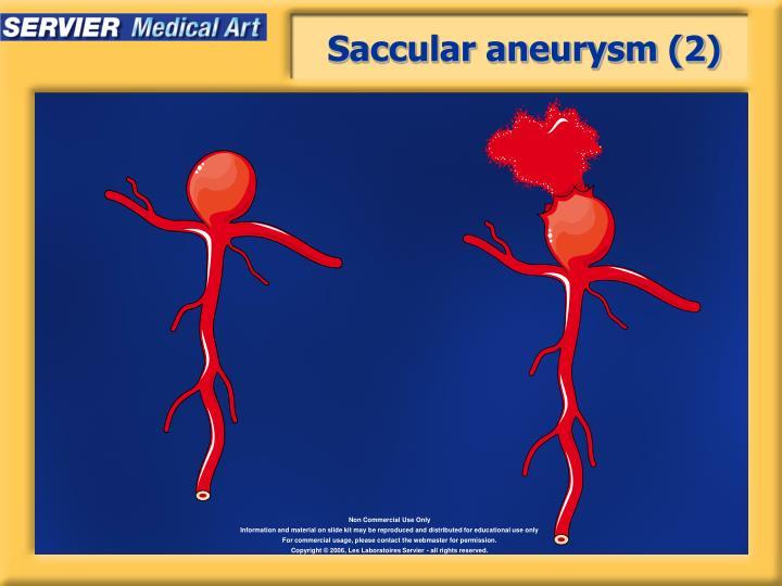 Saccular aneurysm (2)