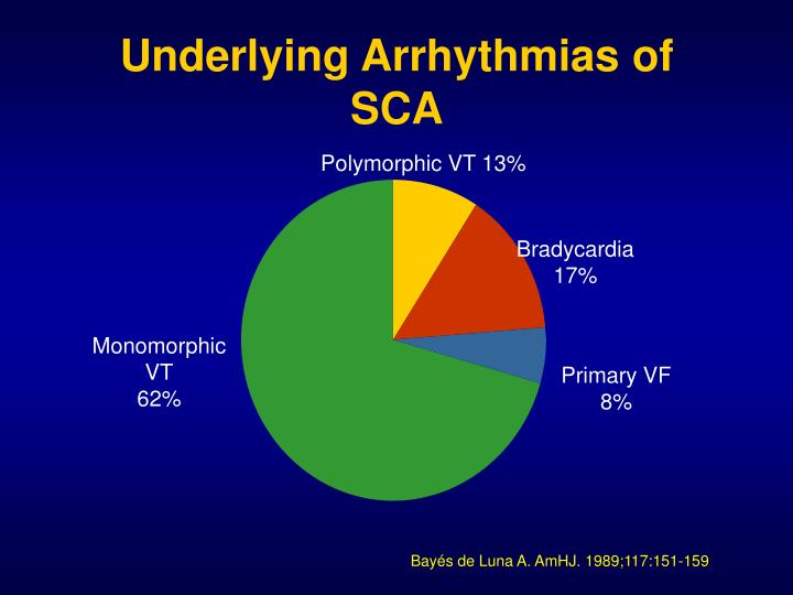 Underlying Arrhythmias of