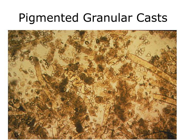 Pigmented Granular Casts