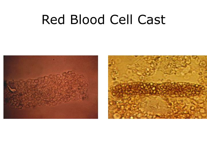 Red Blood Cell Cast