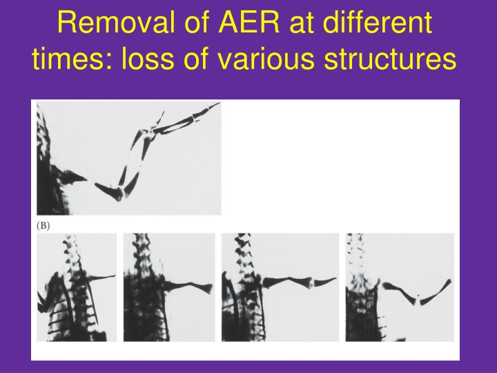 Removal of AER at different times: loss of various structures