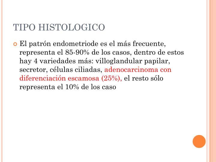 TIPO HISTOLOGICO