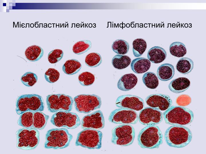 Мієлобластний лейкоз