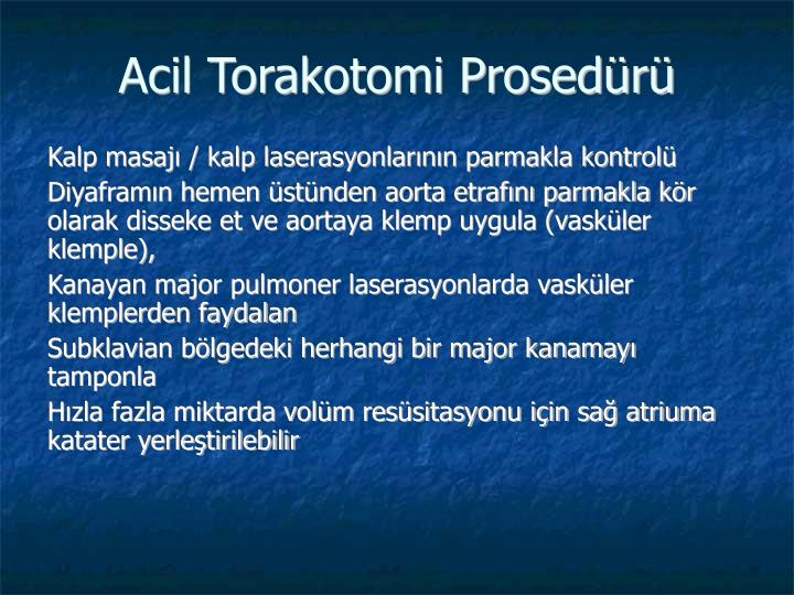Acil Torakotomi Prosedr