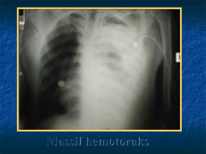 Massif hemotoraks