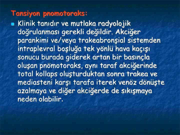 Tansiyon pnomotoraks: