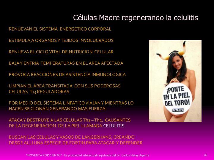 Células Madre regenerando la celulitis