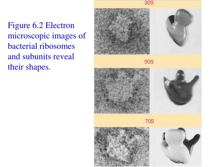 Figure 6.2 Electron microscopic images of bacterial ribosomes and subunits reveal their shapes.