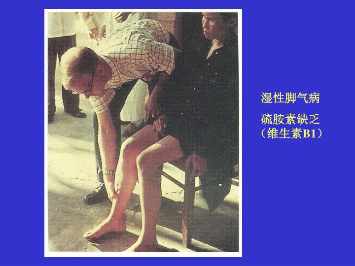 湿性脚气病