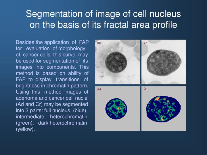 Segmentation of image of cell nucleus