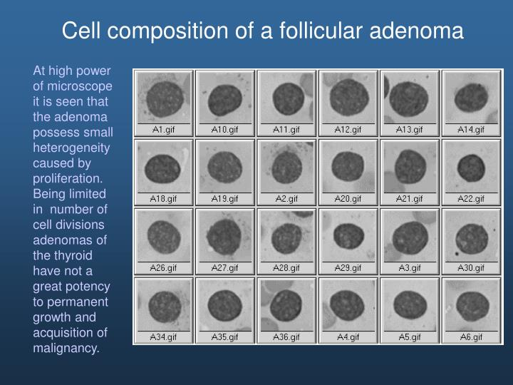Cell composition of a follicular adenoma