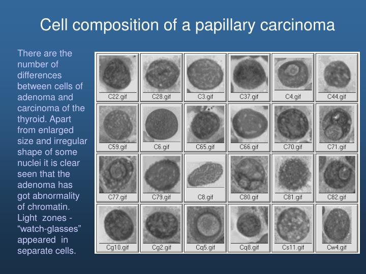 Cell composition of a papillary carcinoma