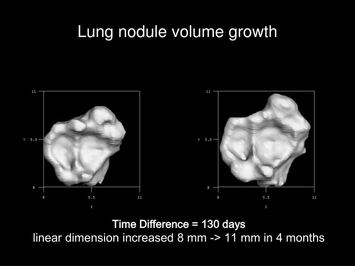 Lung nodule volume growth