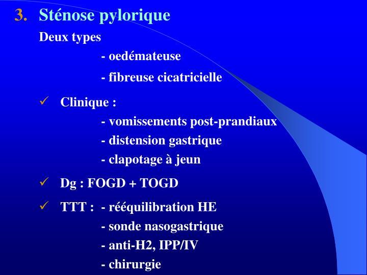 Sténose pylorique