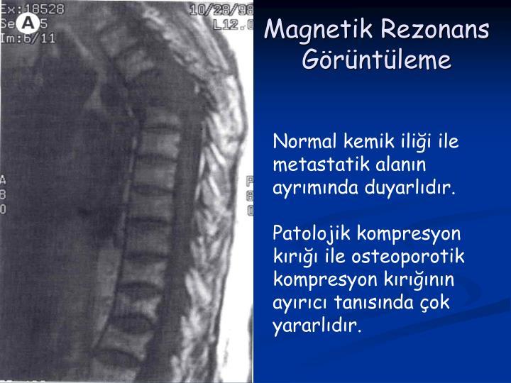 Magnetik Rezonans Görüntüleme