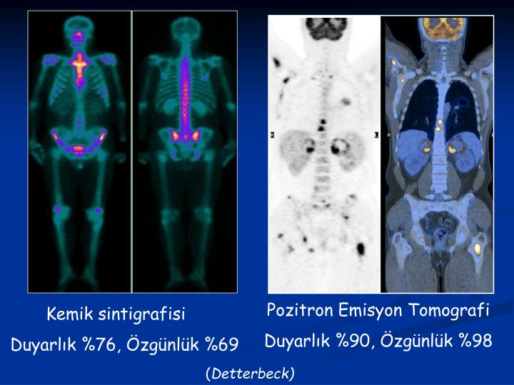 Pozitron Emisyon Tomografi