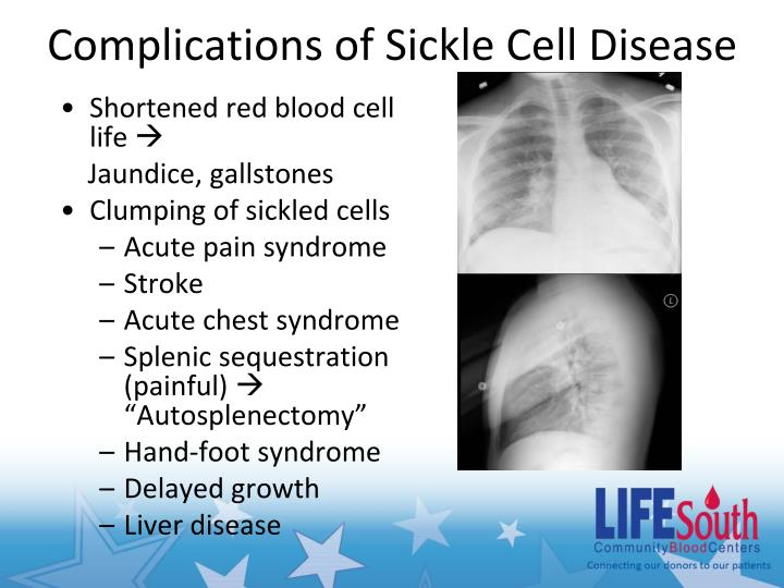 Complications of Sickle Cell Disease