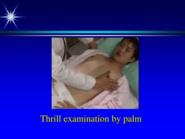 Thrill examination by palm