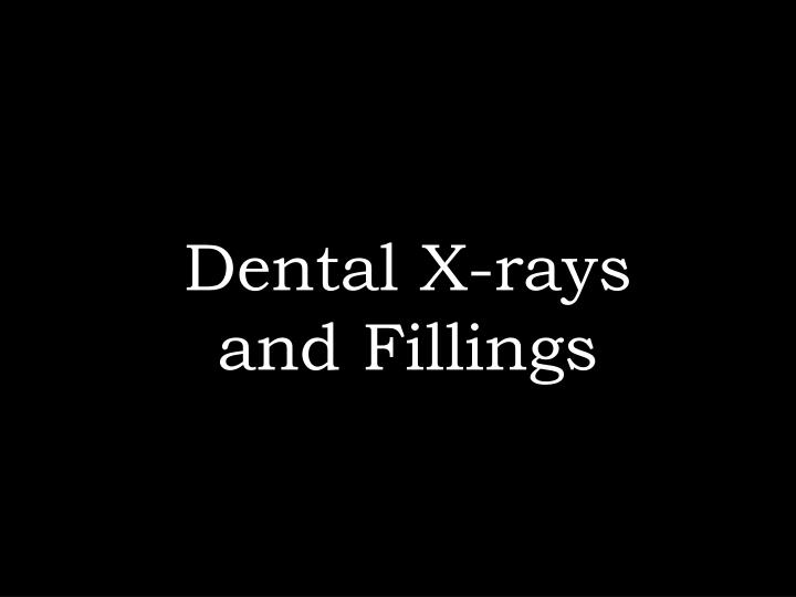 Dental X-rays and Fillings