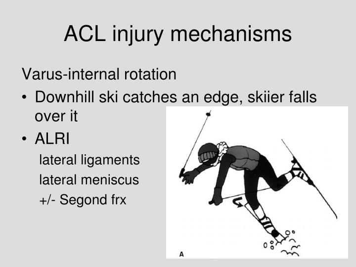 ACL injury mechanisms