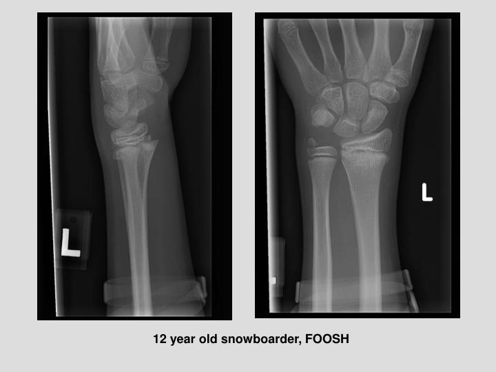 12 year old snowboarder, FOOSH
