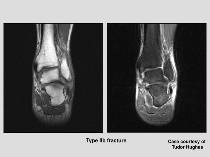 Type IIb fracture