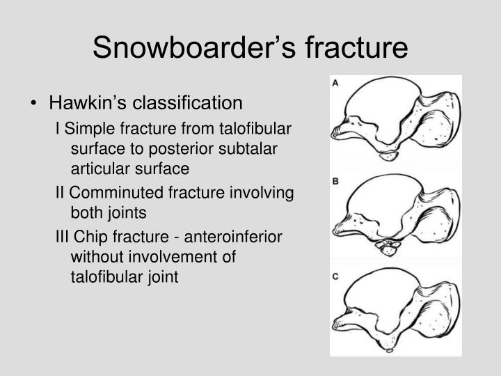 Snowboarder's fracture