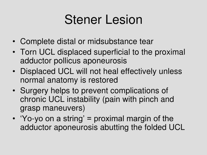Stener Lesion