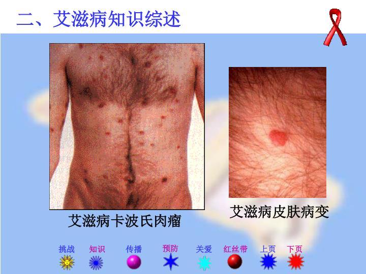 艾滋病皮肤病变