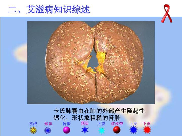 卡氏肺囊虫在肺的外部产生隆起性钙化,形状象粗糙的肾脏