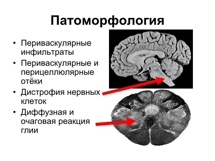 Патоморфология