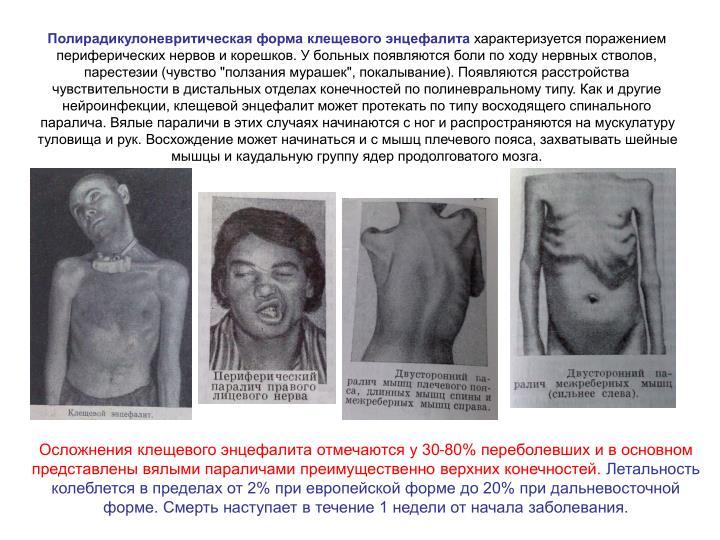 Полирадикулоневритическая форма клещевого энцефалита