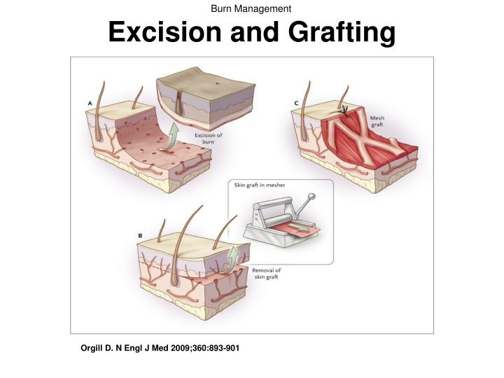 Excision and Grafting