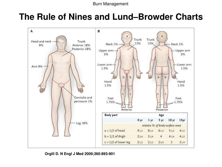 The Rule of Nines and Lund–Browder Charts