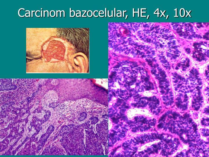Carcinom bazocelular, HE, 4x, 10x