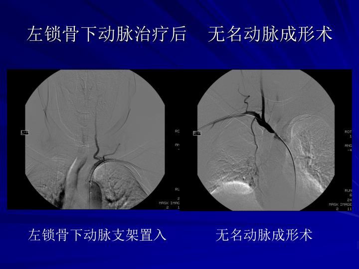 左锁骨下动脉治疗后    无名动脉成形术