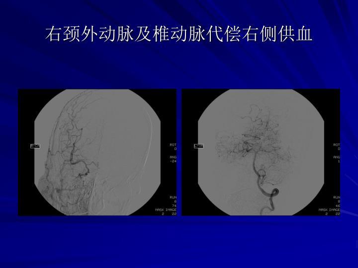 右颈外动脉及椎动脉代偿右侧供血
