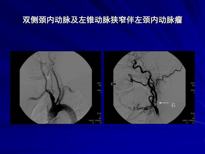 双侧颈内动脉及左锥动脉狭窄伴左颈内动脉瘤