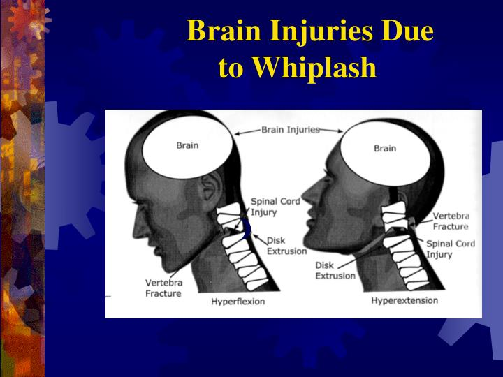 Brain Injuries Due