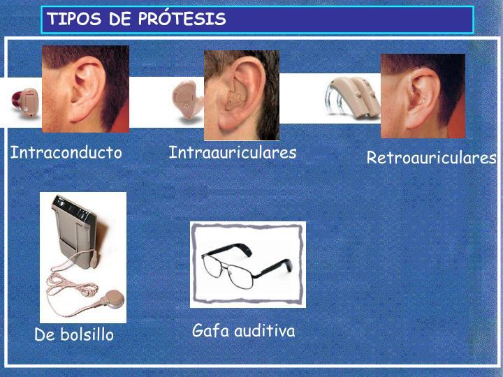 TIPOS DE PRÓTESIS