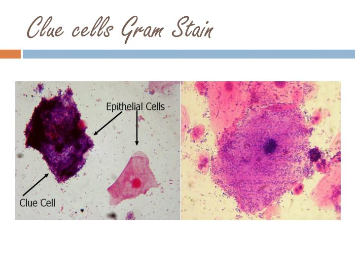 Clue cells Gram Stain