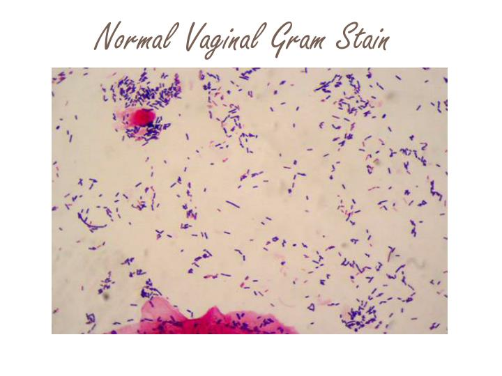 Normal Vaginal Gram Stain